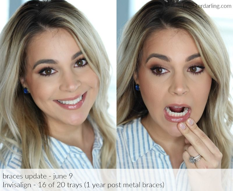 Good topic before and after adult braces something also