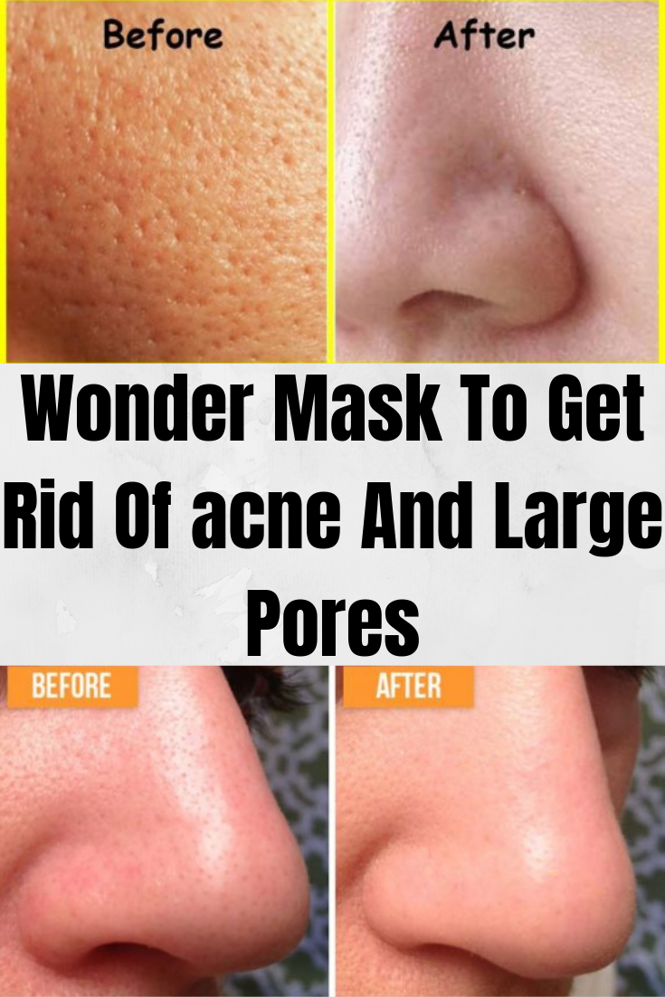 aa8bfab396f5fea4ee503b10230c600a - How To Get Rid Of Acne Blackheads And Oily Skin