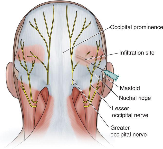 occipital nerve에 대한 이미지 검색결과   구현웅박사님과 함께 ...