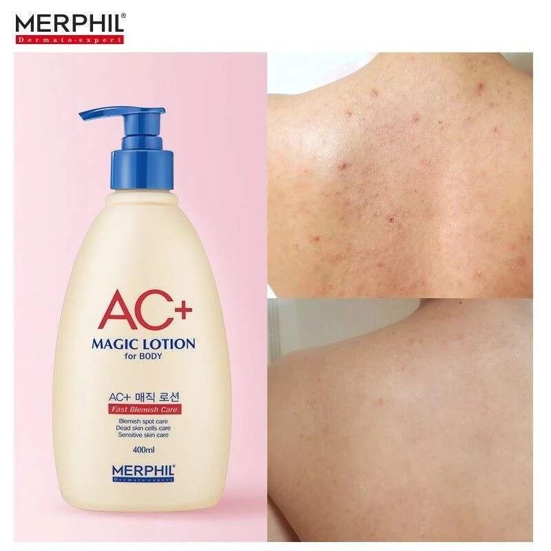 Merphil Ac Magic Lotion For Body 400ml 13 52oz Acne Blemish Body Cream K Beauty Acne Blemishes Body Cream Body Acne