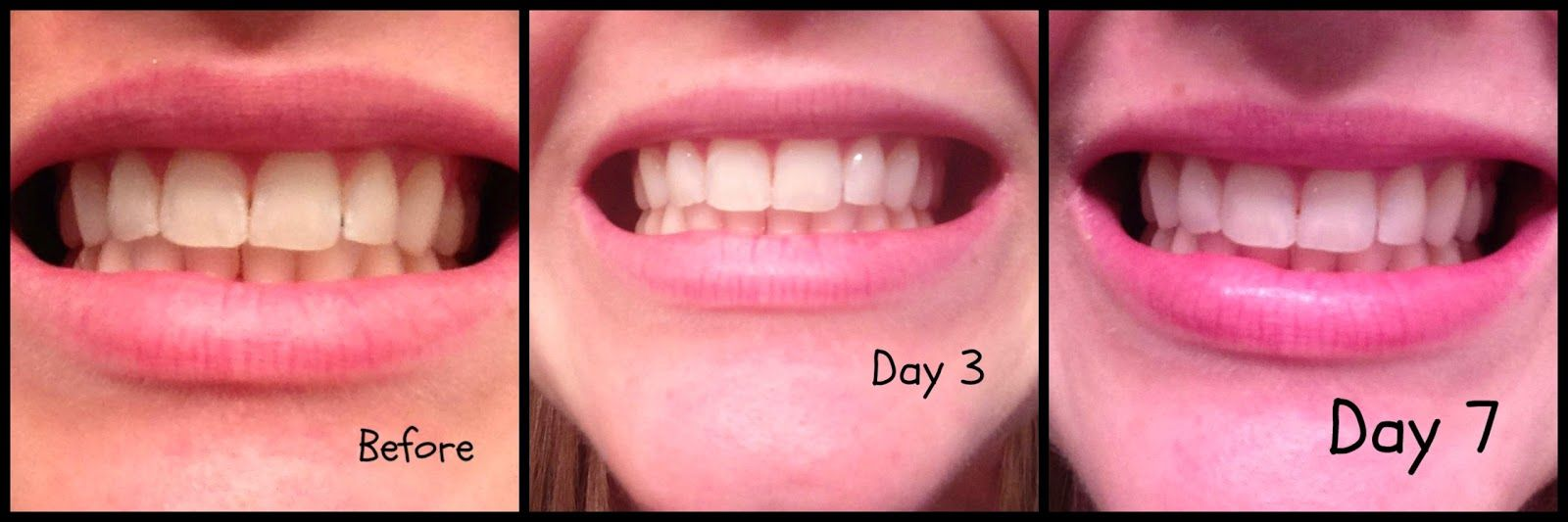 Colgate teeth whitening teeth whitening products pinterest teeth - My Show Because Who Doesn T Want Whiter Teeth
