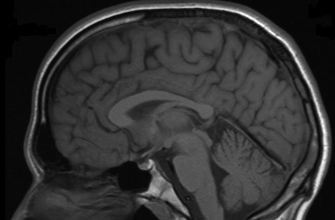 """""""Just like the Human Genome Project advanced research in genetics, a project to map the human brain will accelerate our understanding of how the mind works. As reported by the New York Times, the Obama administration will unveil an effort to map out brain activity as part of its budget proposals..."""""""