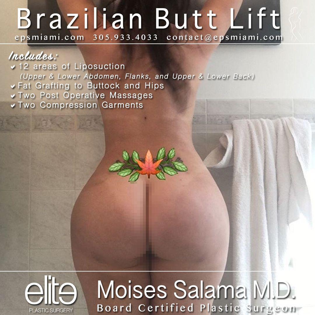 Pin on Brazilian Butt Lift
