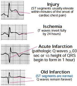 EKG injuries. Used to be monitor tech in an ICU. | Myocardial ...