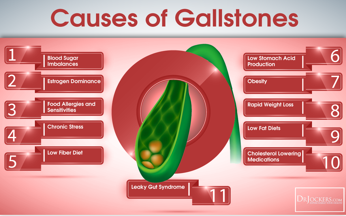 How To Beat Gallstones Naturally Nourishing Traditions