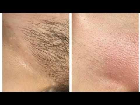 277 Diy Painless Sugar Wax At Home Ideal For Brazilian Waxing Youtube Brazilian Waxing Diy Wax Hair Removal Sugar Waxing