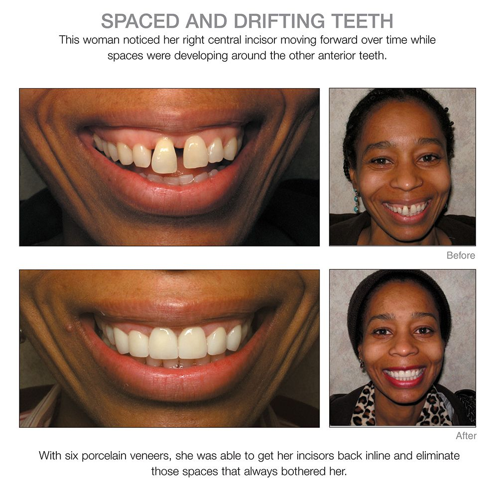 Space And Drifting Teeth Corrected Dentist Cosmetic Dentist Dentistry