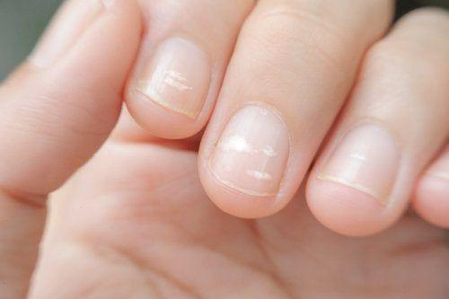 Découvrez pourquoi des lignes blanches apparaissent sur les ongles et comment les éliminer