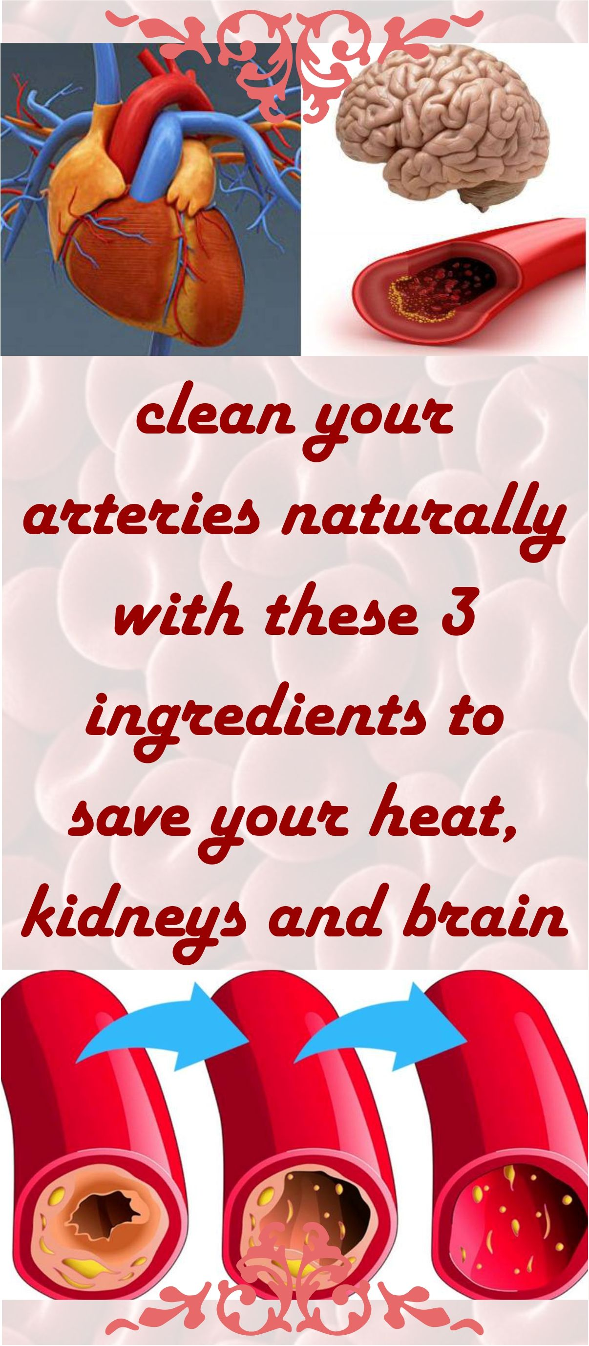 Clean Your Arteries Naturally With These 3 Ingredients To Save Your Heart Kidneys And Brain Arteries Natural Medicine Recipes Natural Health Remedies