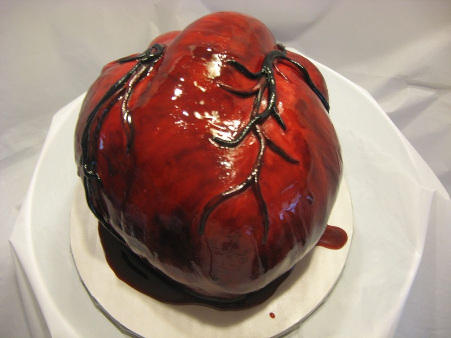 Prime Bleeding Human Heart Cake Personalised Birthday Cards Petedlily Jamesorg
