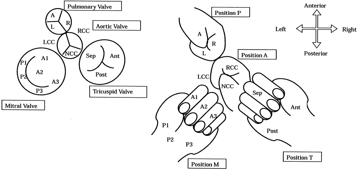 aortic valve in relation to pulmonary valve - Google Search | Echo ...
