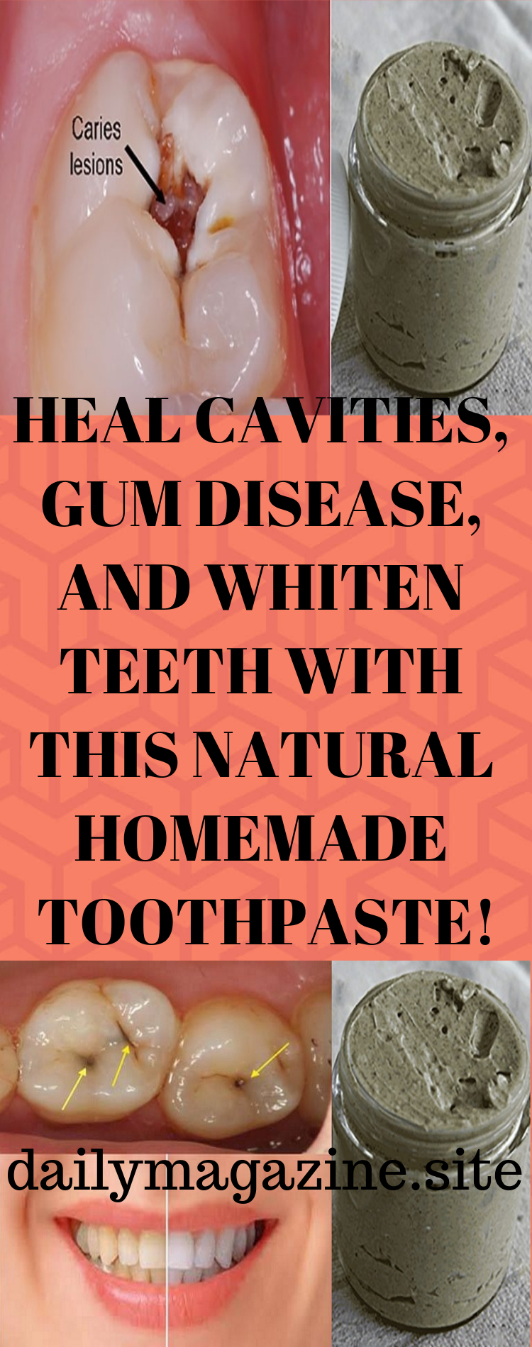 Heal guns cavities  Teeth  Pinterest  Guns Teeth and Remedies