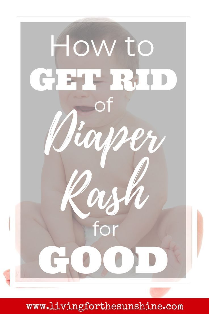 How to Get Rid of Diaper Rash for GOOD - Living For the Sunshine
