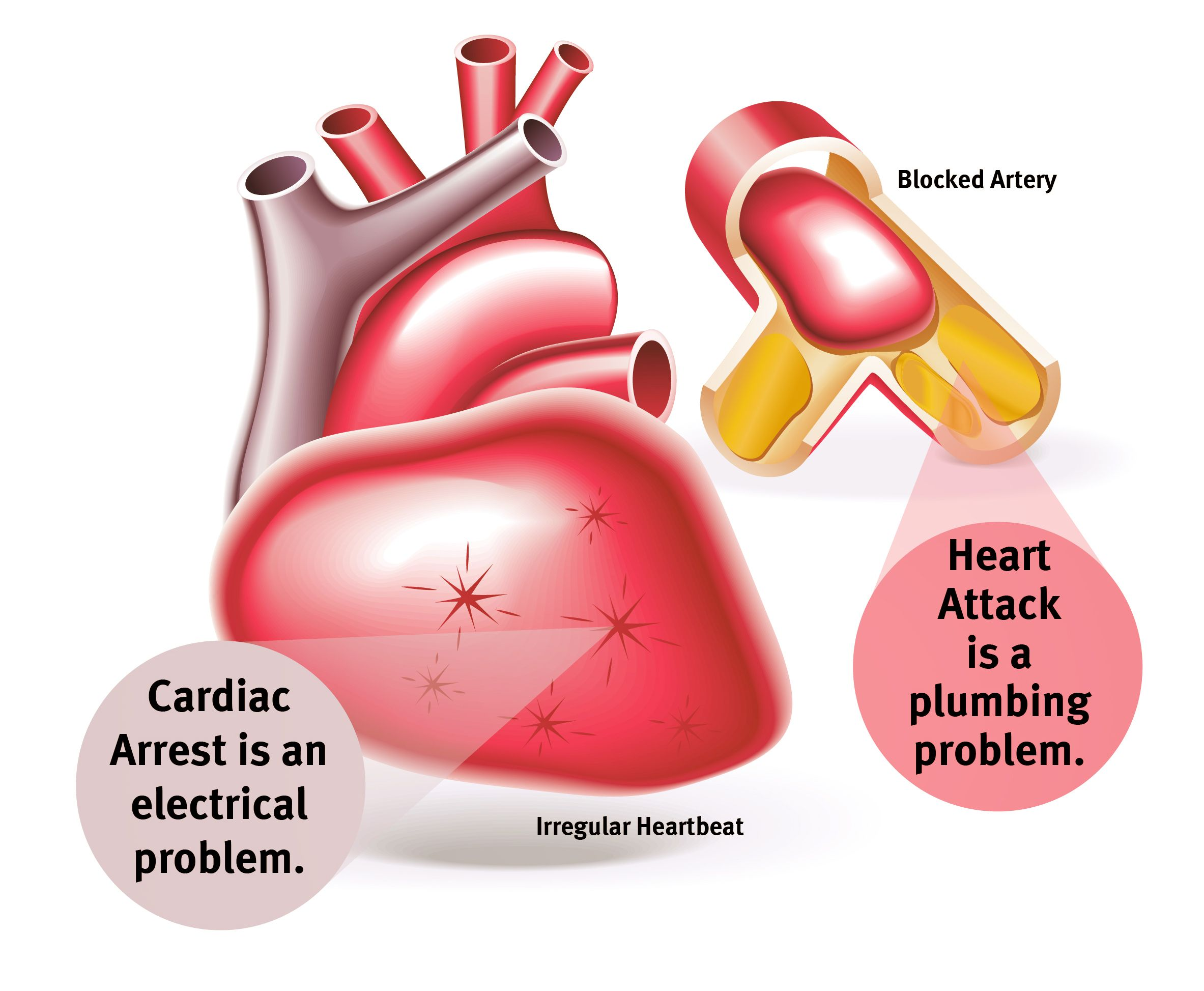 heart attack vs cardiac arrest its like a plumbing issue vs