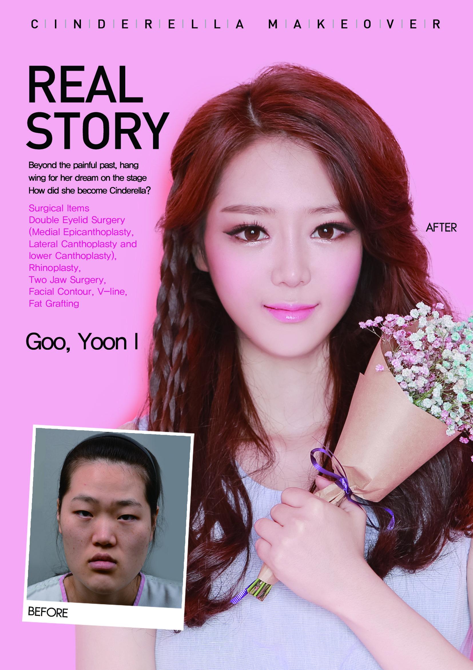 pin by cinderella plastic surgery korea on real story - goo, yoon i