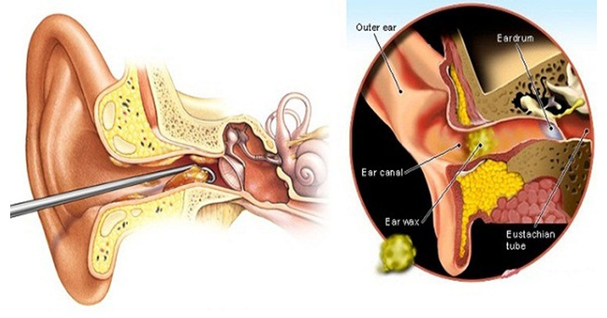 Causes for ear wax buildup and how to remove it at home