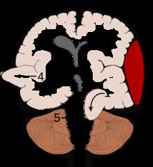 MBChB3 - Week 15 - Neurology flashcards   Quizlet   Medicine