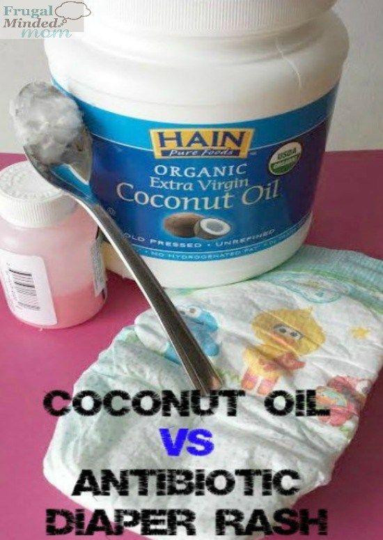 coconut-oil-diaper-rash-rescue | Coconut oil diaper rash ...