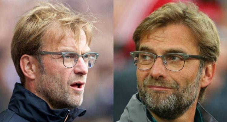 Haartransplantation Vorher Nachher Bild Klopp Bart Haartransplantation Bart Haare