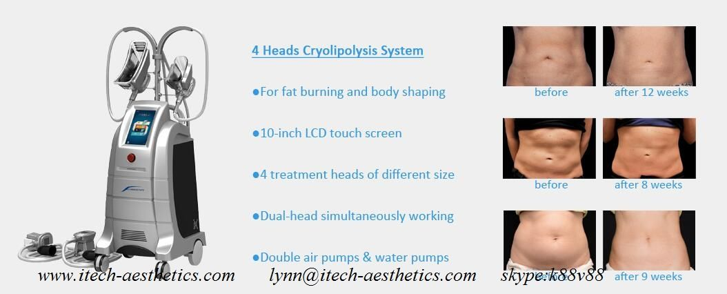 cryolipolysis coolsculpting coolsculpting cost freeze the