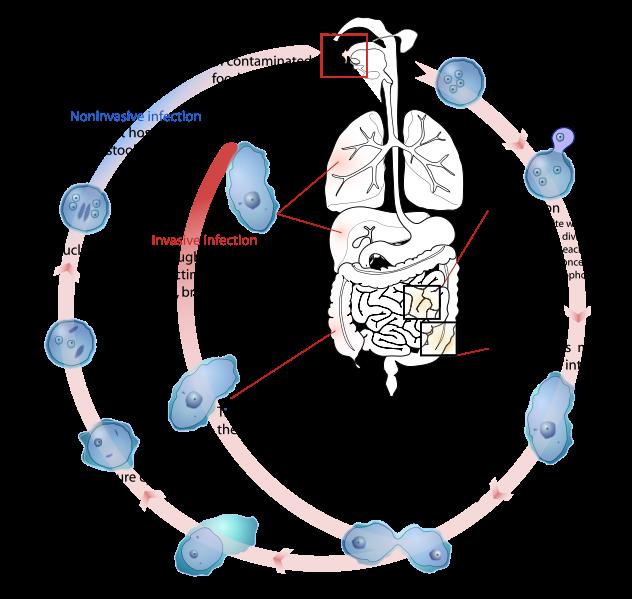 how to get rid of amoeba entamoeba gingivalis