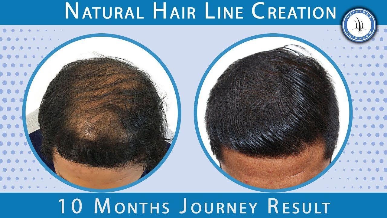 10 Months Hair Transplant Result Gallery