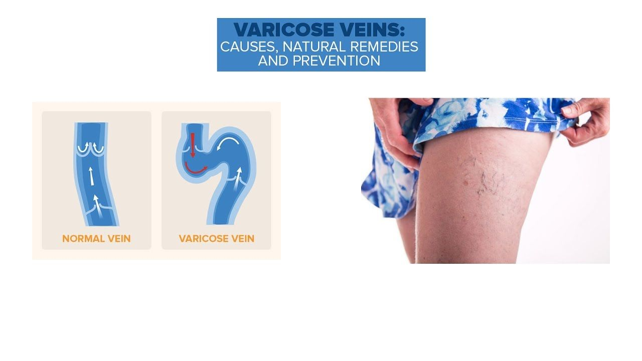 How to Prevent and Naturally Heal Varicose Veins