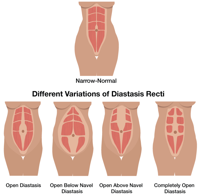What Does Diastasis Recti Look Like In Overweight Women