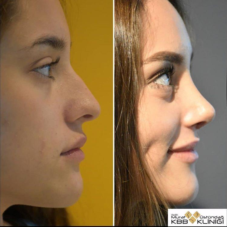 nosejob | rhinoplasty | rinoplastia | surgery | plastic surgery | cirugía