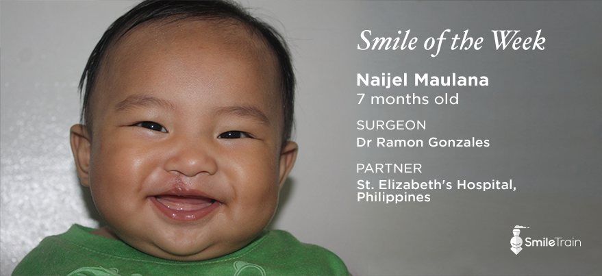 Naijel From The Phillippines 7 Months Old With Images 7 Month Olds Surgeon Doctor Face