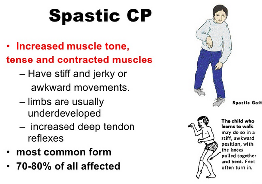 what is cerebral palsy pdf