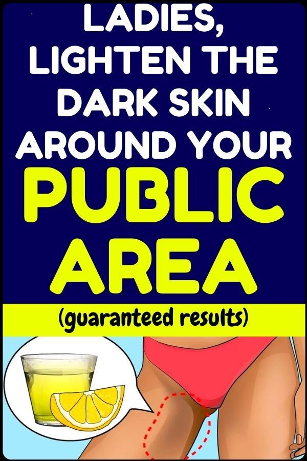This is how to lighten the dark skin around your pubblicn area - for all girls and women...! #naturalcures