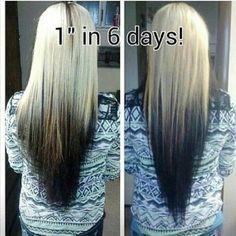 This Vitamin Makes My Hair Grow Really Fast Its Not Just For Thinning Hair My Hair Seemed To Get Long Overnight Peo Hair Skin Nails Hair Vitamins Hair Hacks