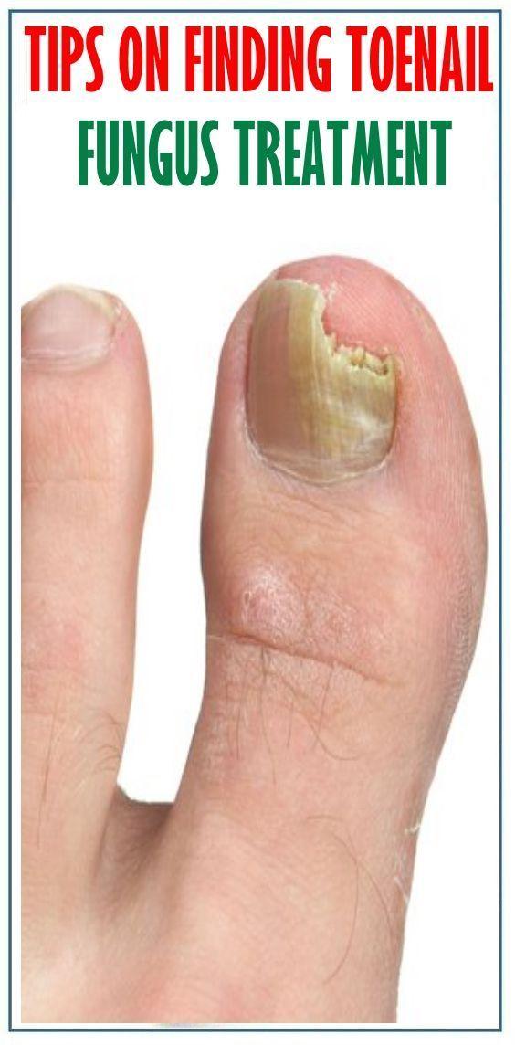 Tips On Finding Toenail Fungus Treatment | Toenail Fungus Polish ...