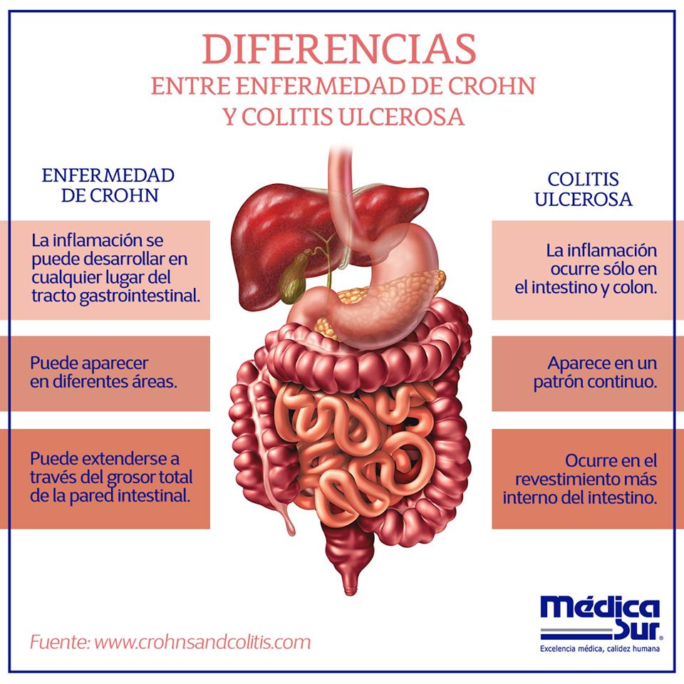 cuidados de enfermeria colitis ulcerativa