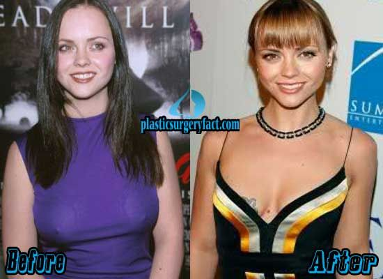 Topic boob christina ricci really