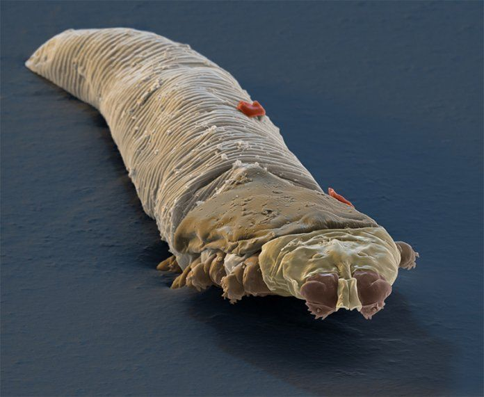 How To Kill Demodex Mites In Your Home Mites Rosacea Bugs