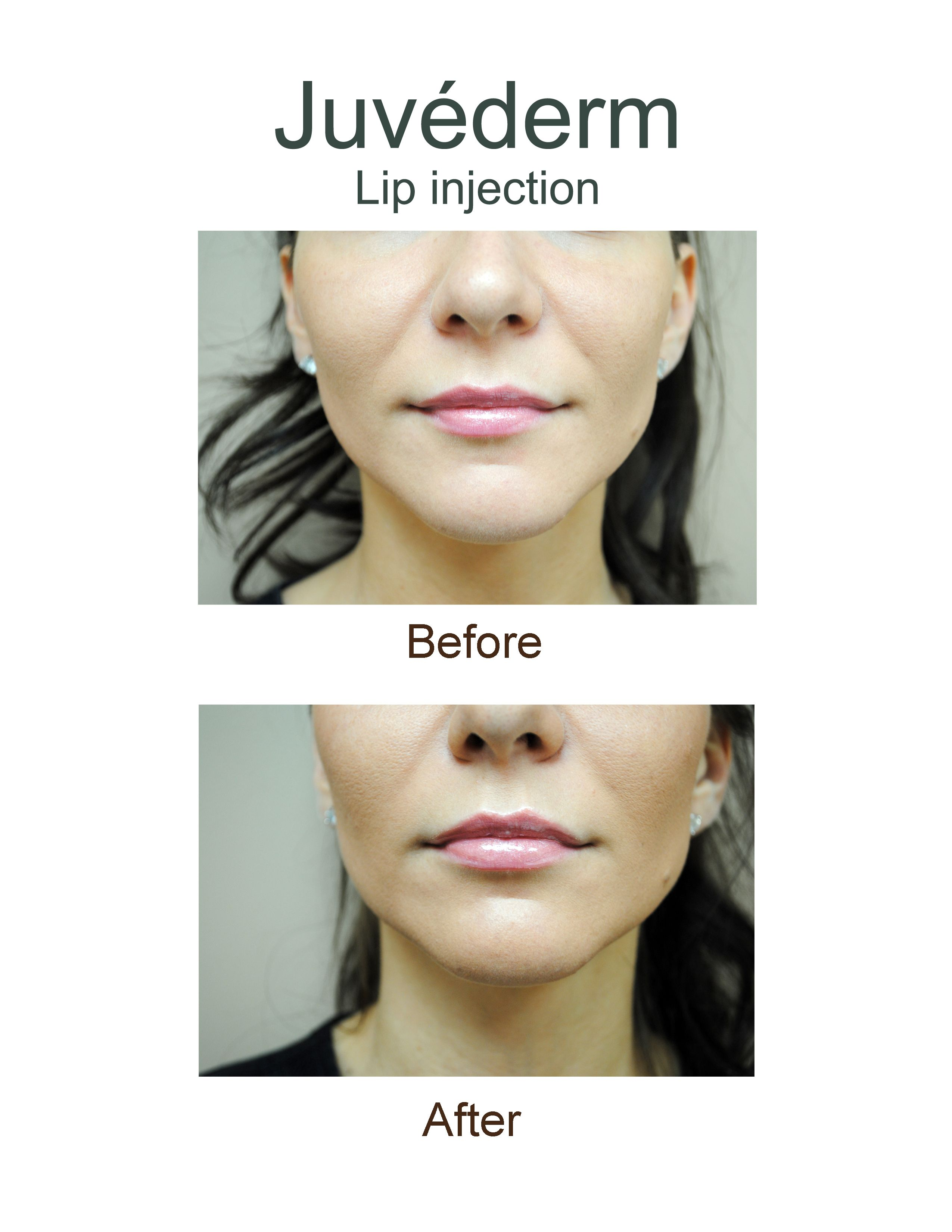 Juvaderm Dermal Fillers | Lip injections, Juvederm lips, Lip ...