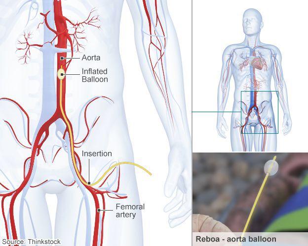 REBOA Resuscitative Endovascular Balloon Occlusion of the Aorta ...