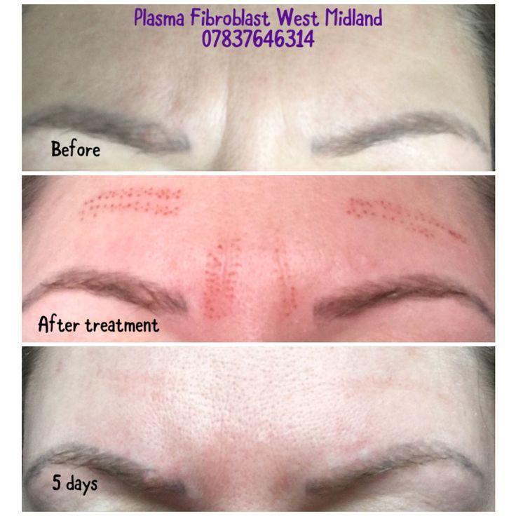 Pin by Rita Miller on Skincare Skin tightening