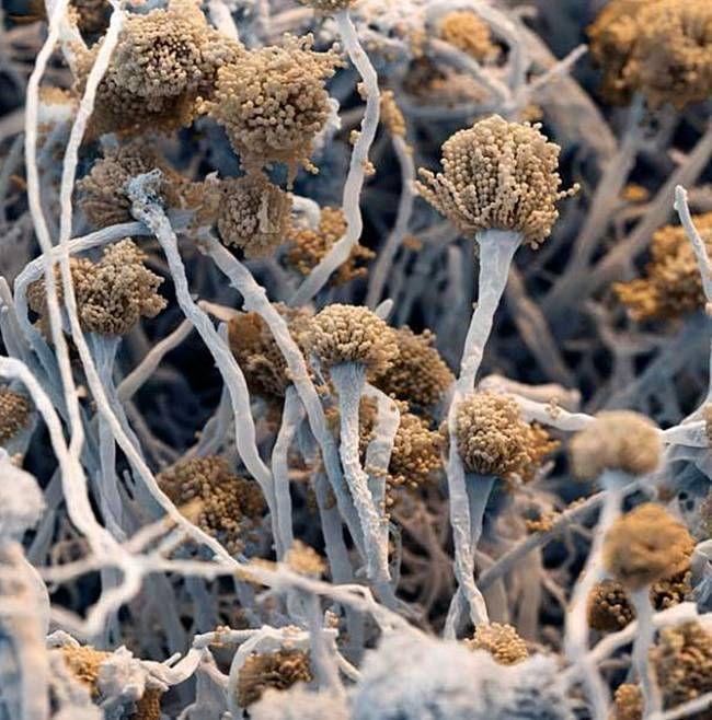 3F: Electron Microscopy