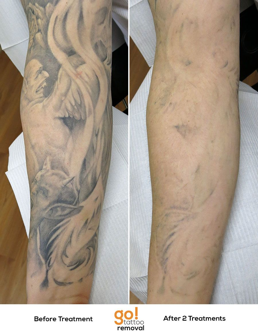 This is a portion of a full sleeve we faded. The first