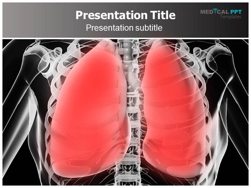 Pneumonia Ppt Template Interactive Pneumonia Powerpoint Editable
