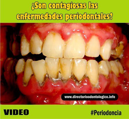 La periodontitis es contagiosa