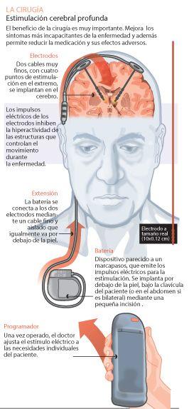 Infográfico que explica la Estimulación cerebral profundaClínica Universidad de Navarra