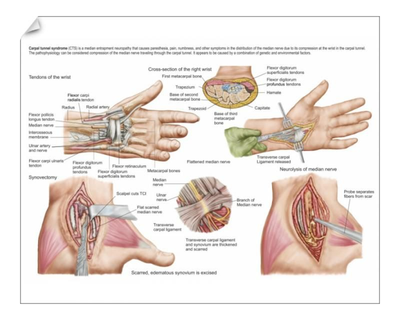16+ 10 inch Photo. Medical illustration showing carpal tunnel