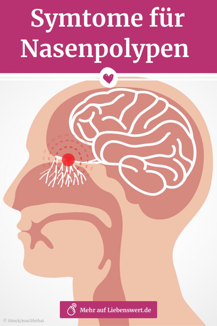 Nasenpolypen Erste Symptome Richtig Deuten Und Behandeln Liebenswert Nase Fit Bleiben