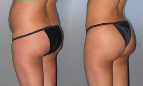 Lipo 360 before and after 7 | Liposuction before and after