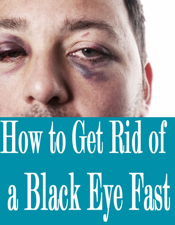 How To Get Rid Of A Black Eye Really Fast
