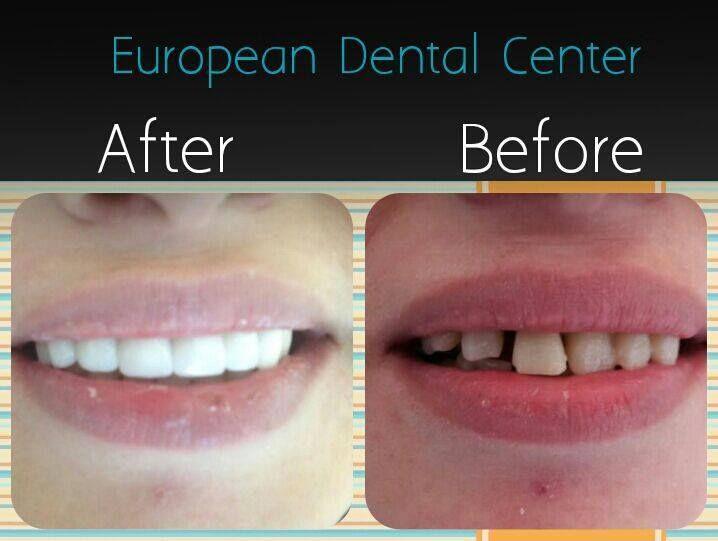 Pin By European Dental Center On ابتسامة هوليود فينييرز Dental Center Dental European